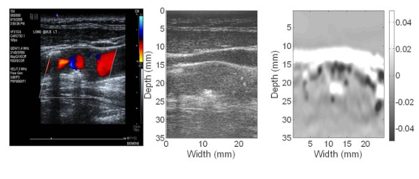 Strain imaging in atherosclerotic plaque