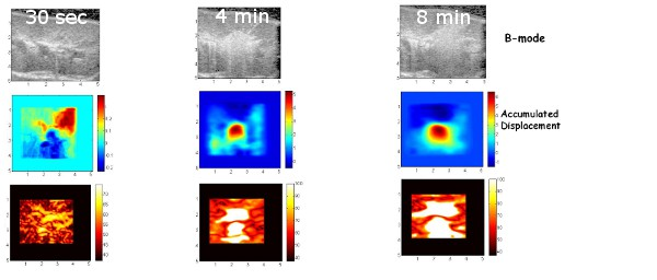 Temperature imaging