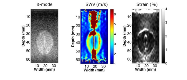 Shear wave imaging